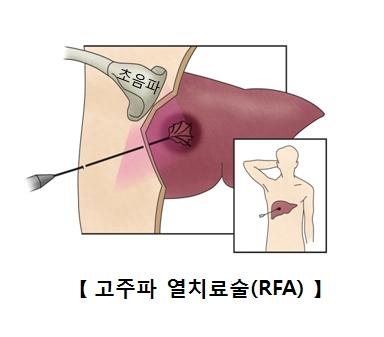 고주파 열치료술의 예시
