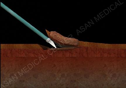 내시경 수술로 암조직을 떼어내는 측면 모습예시