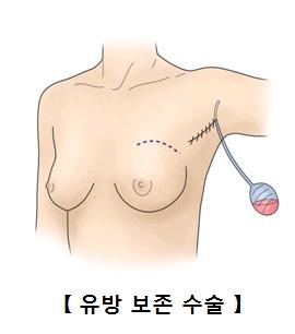 유방 보존수술의 예시