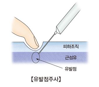 유발점에 주사를 놓고있음 피하조직,근섬유 위치설명