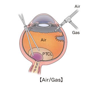 눈 속의 유리체를 제거하고 유리체 피질과 망막전막을 벗겨 제거한 뒤 눈 속에 특수가스인 C3F8이나 SF6를 적당한 농도로 만들어 채우고 수술창상을 봉합하는 수술방법