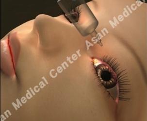 각막치료를 받고있는 환자의 모습