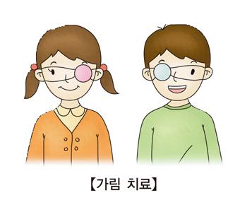 가림치료-왼쪽에에 안대를하고있는 어린여자아이와 오른쪽눈에 안대를 하고 있는 어린남자아이
