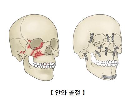 안면골절의 예시한 두개골