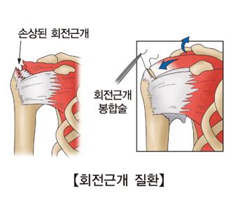 회전근개 질환 사진예시및 손상된 회전근개,회전근개봉합술
