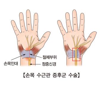 손목인대 정중신경의 위치와 손목수근관증후군수술의 절제부위, 수술후의모습