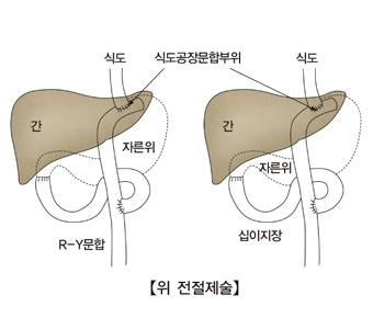 위 전절제술의 간 식도 식도공장문합부위 자른위 십이지장 R_Y문합의 비교모습 예시