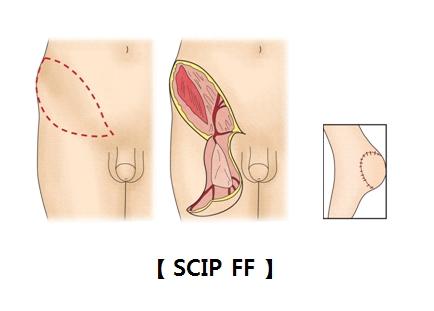 감염되고 죽은 조직을 수술적으로 제거하여 건강한 조직으로부터 상처 치유가 시작되도록 하는 변연 절제술과 크고 깊은 상처 조직을 다른 부위의 살로 덮어 주는 재건수술 예시