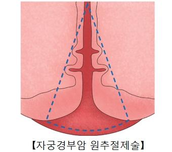 자궁경부암 원추절제술의 예시