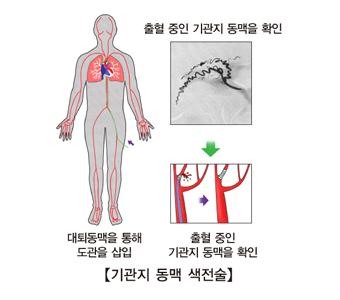 대되동맥을 통해 도관을 삽입 및 출혈중인 기관지 동맥을 확인 하여 기관지 동맥 색전술을 치료하는 방법의 예시