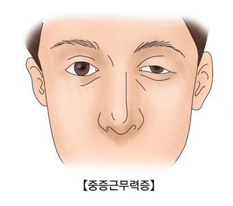 중증근무력증에 걸려 한쪽이눈이 잘 안떠지는 남성의 얼굴