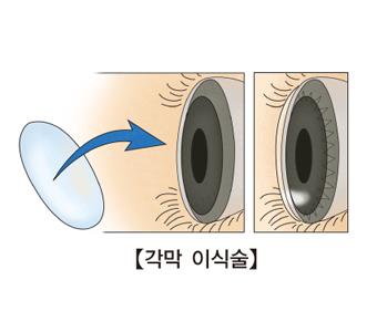 각막이식술을 하기전,후의 사진 예시