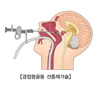 경접형골동 선종제거술 모습 예시