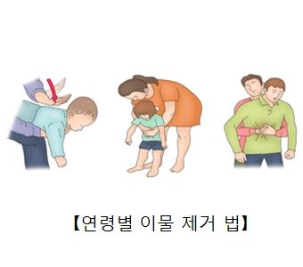 유아 청소년 성인 연령대별 이물질 제거하는법 예