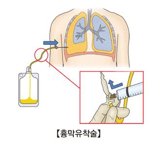 흉막유착술에 대한 예시