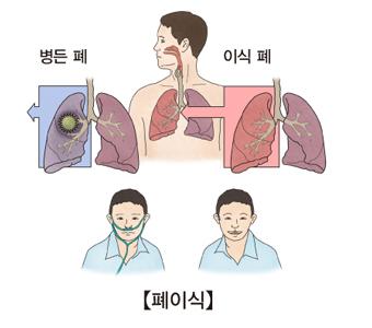 병든폐와 이식한폐의 차이의 예시 및 이식후 산소호흡기를 때고 밝아진 아이의 모습
