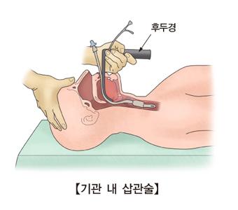 후두경을 기관내 삽관술을 보여주는 예