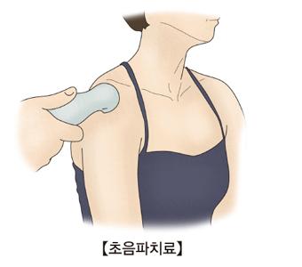 어깨에 초음파검사를 받구있는 여성