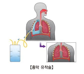 흉막 유착술로 치료하는 예시