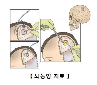 두개골을을 절제하여 농양을 제거하는 수술 모습